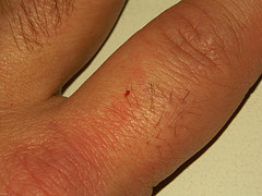 mild bed bug bites on human hand