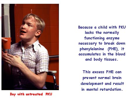 Boy with untreated PKU. He usually shows electroencephalogram abnormalities, and may show a reduction in head size.  He is likely to have a distinct, musty, unpleasant odor, and to have lighter hair and less skin pigment than other members of his family